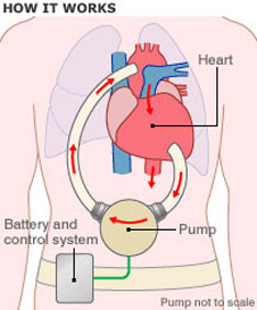 Temporary heart pump could save lives