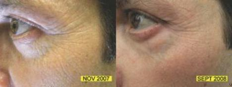 Rejuvenating LED lights - a potential competitor for Botox